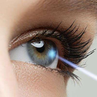 SURGERY, LASHES, OPERATION, LENS, IRIS, BEAM, CORRECTION, LASER, EYE, VISION, OPTICAL, SIGHT